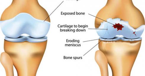 Vai trò của Glucosamine trong điều trị đau xương khớp